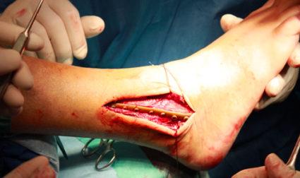 Спица в ноге помогает кости принять нужную форму