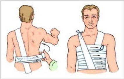 Тугая повязка при травме грудной клетки