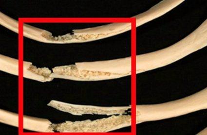 Неполный перелом кости