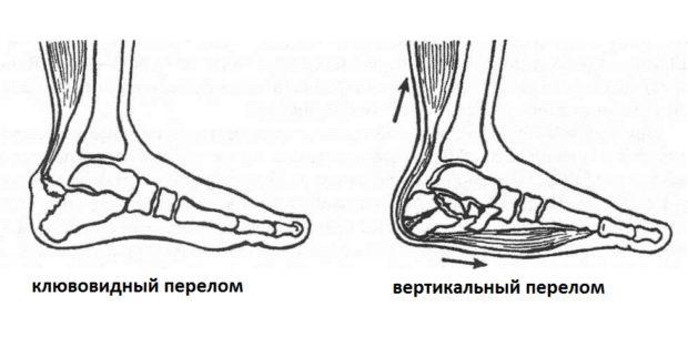 Классификация травм пятки