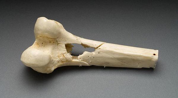 Серьезное заболевание костной ткани без причины