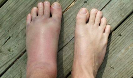 Опухшая нога - признак перелома
