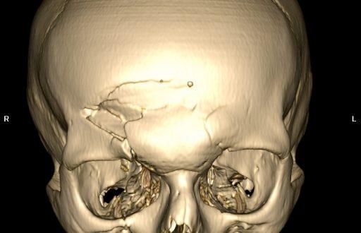 Травма черепа - опасна травма