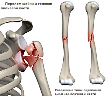 Травма плеча разных видов