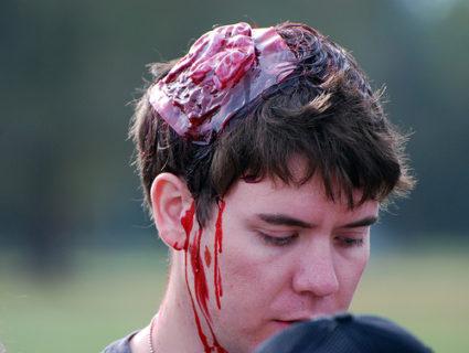 Кровопотеря может усугубить состояние
