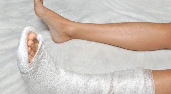 Из за гололеда можно сломать ногу