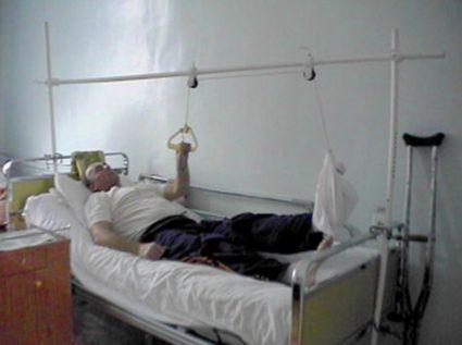 Перелом шейки бедра лечение
