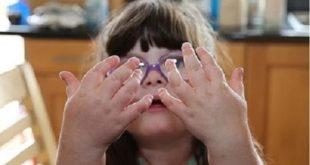 Деформированные пальцы у юнной принцессы