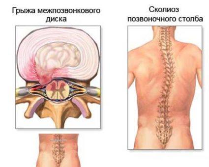 Мануальная терапия помогает при сколиозе