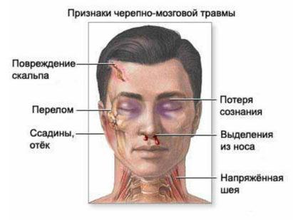 Симптомы травм черепа