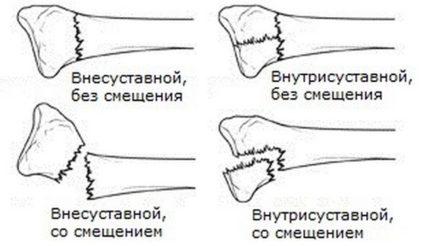 Лучевая кость имеет свою классификацию переломов