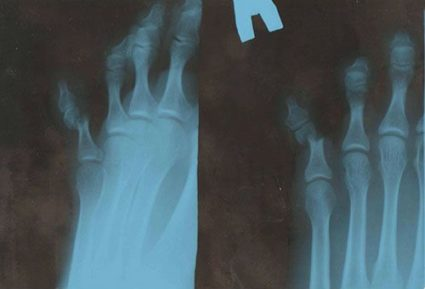 Рентген после травм пальца на ноге