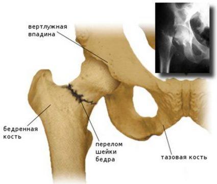 Слом кости - это опасная травма