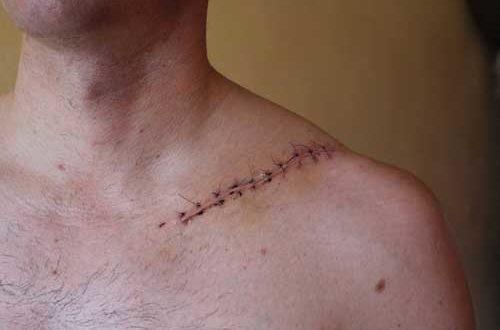В случае серьезных переломов необходимо оперировать