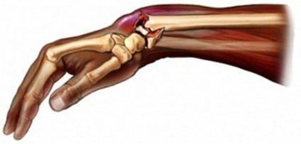Падение на руку приведет к перелому кости
