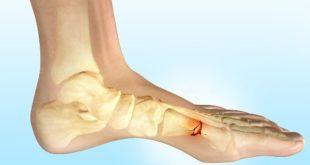 Травма стопы может не сразу проявить себя