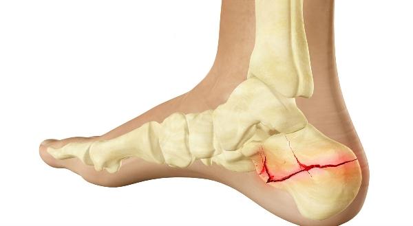 Удар об пятку может привести в перелому кости