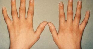 Поражение суставов на руках