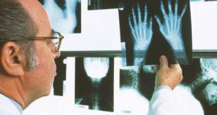 Рентгеновский снимок покажет степень поражения сустава