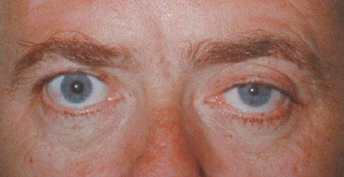Много болезней можно опредилить невооруженным взглядом