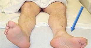 После перелома бедра ноги не одного размера