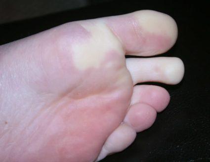 Онемение большого пальца на ноге
