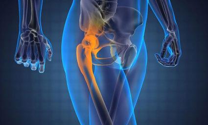 Воспаление в тазобедренном суставе