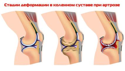 Три стадии развития артроза