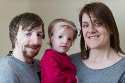 Семья с синдромом Тричера Коллинза