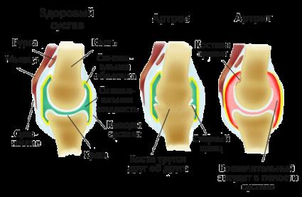 Болезнь суставов