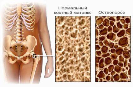 Болезнь кости