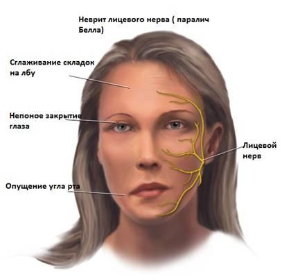 У женщины неврит