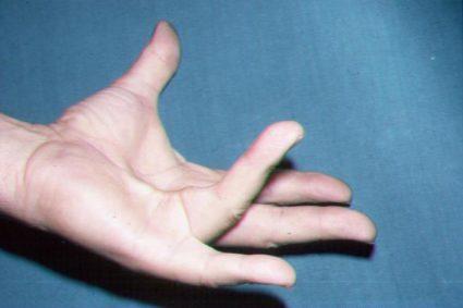 Апоневроз ладони