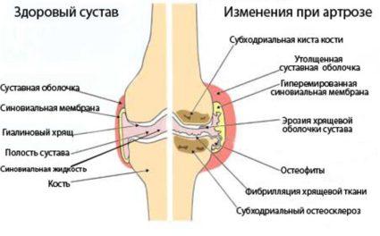 Лечение суставов и коленей в Китае. Артрит артроз
