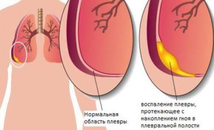 Кальцинаты в лёгких