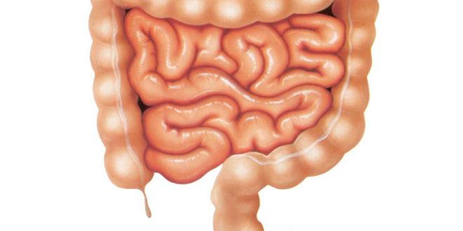 Симптомы артроза