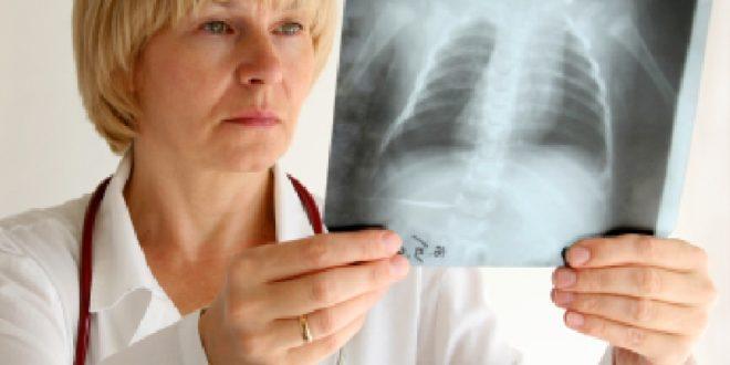 Врач рассматривает рентген легких