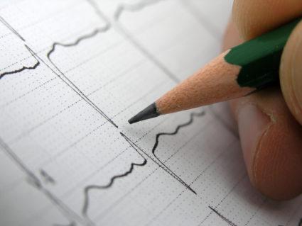 Карандаш и кардиограмма