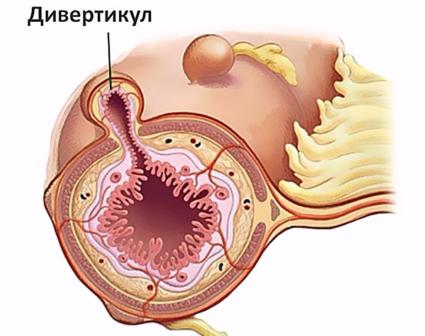 Дивертикулит кишки
