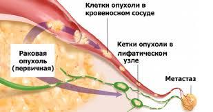 Метостазы в позоночнике