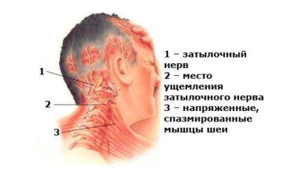 Ригидность мышц
