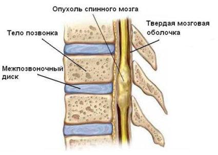 Рак позвоночника