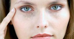 Парез глазодвигательного нерва