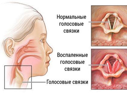 Лечение связок
